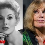 Kim Novak plastic surgery befoe and after 150x150