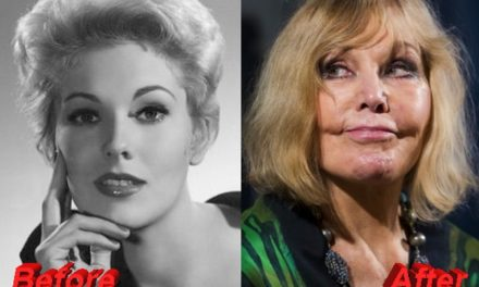 Kim Novak's Bad Transformation After Plastic Surgery