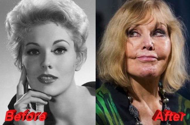 Kim Novak plastic surgery befoe and after