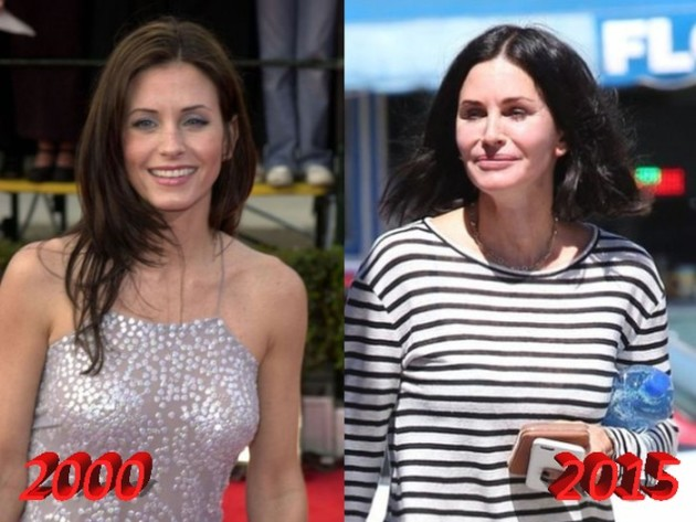 courteney cox plastic surgery disaster 630x473