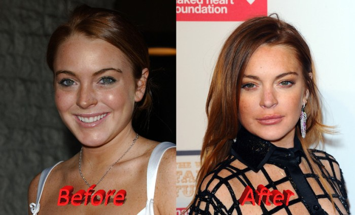 lindsay lohan before and after plastic surgery