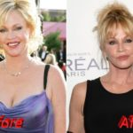 melanie griffith plastic surgery before and after 150x150