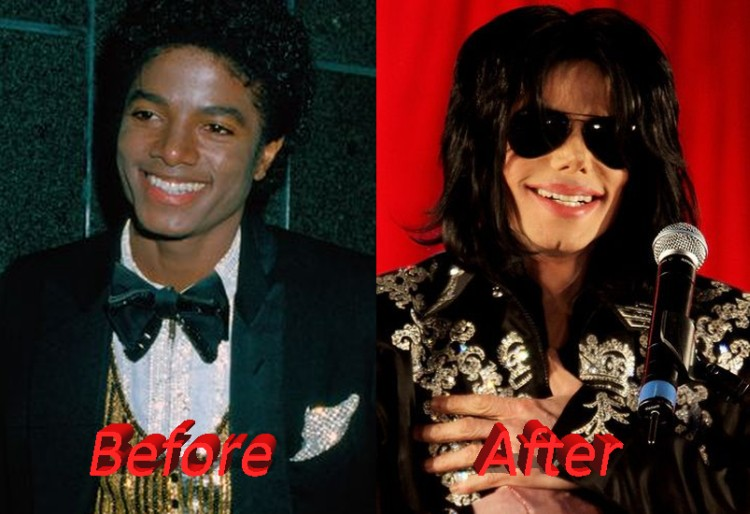 michael jackson plastic surgery gone wrong
