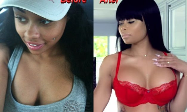 Blac Chyna Plastic Surgery: Is it True or False?