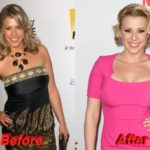 Jodie Sweetin before and after plastic surgery 150x150