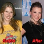 Jodie Sweetin before and after plastic surgery 2 150x150