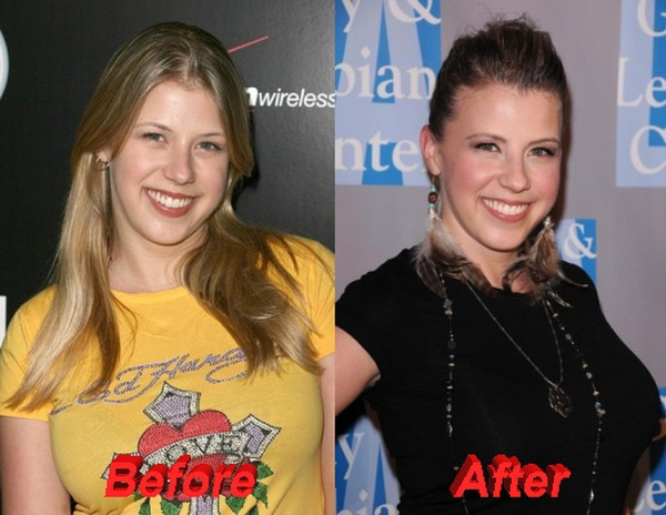 Jodie Sweetin before and after plastic surgery 2