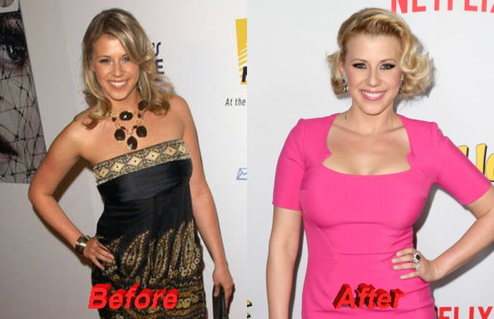 Jodie Sweetin before and after plastic surgery