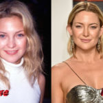 Kate Hudson Plastic Surgery Before and After 150x150