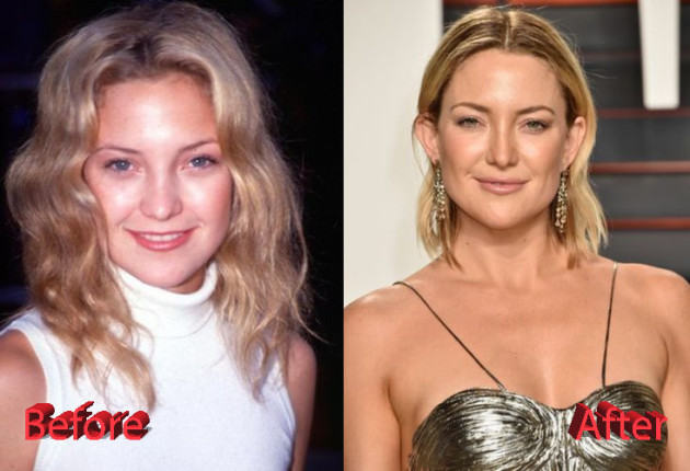 Kate Hudson Plastic Surgery Before and After 630x430