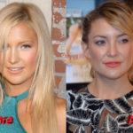 Kate Hudson Plastic Surgery Before and After2 150x150