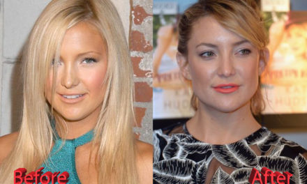 Kate Hudson Plastic Surgery: A Surgery Gone Good
