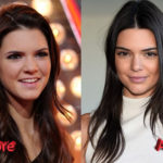 Kendall Jenner Plastic Surgery Before and After2 150x150