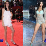Kendall Jenner Plastic Surgery Before and After3 150x150