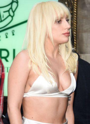 Lady Gaga After NoseJob