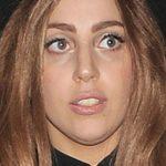 Lady Gaga Before NoseJob Photos