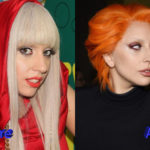 Lady Gaga Nose Job Before and After