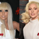 Lady Gaga Nose Job Before and After2