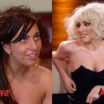 Lady Gaga Nose Job Before and After3 150x150