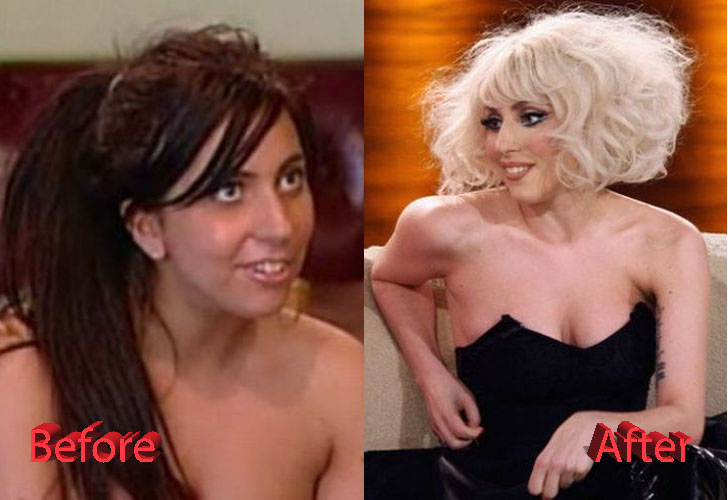 Lady Gaga Nose Job Before and After3
