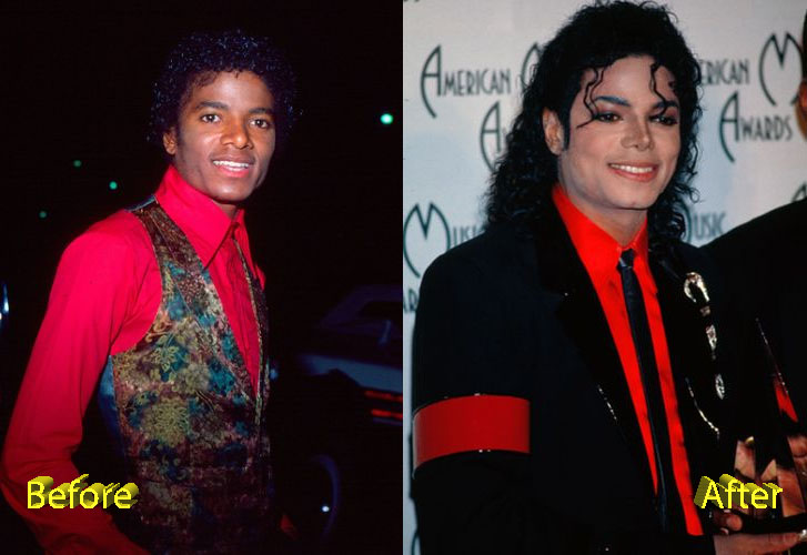 Michael Jackson Plastic Surgery Before and After