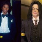 Michael Jackson Plastic Surgery Disaster