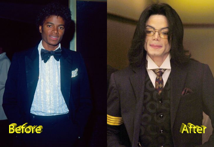 Michael Jackson Plastic Surgery Disaster