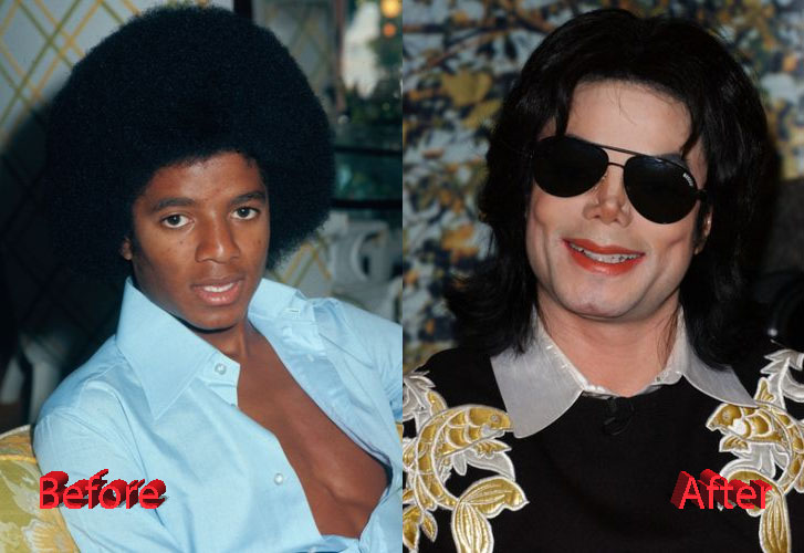 Michael Jackson Plastic Surgery Transformation