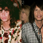 Steven Tyler Before and After Cosmetic Surgery 150x150