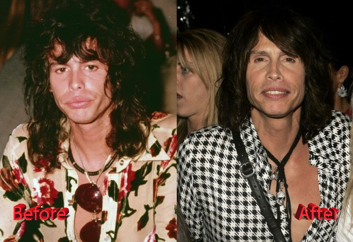 Steven Tyler Before and After Cosmetic Surgery