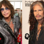 Steven Tyler Before and After Surgery Transformation 150x150