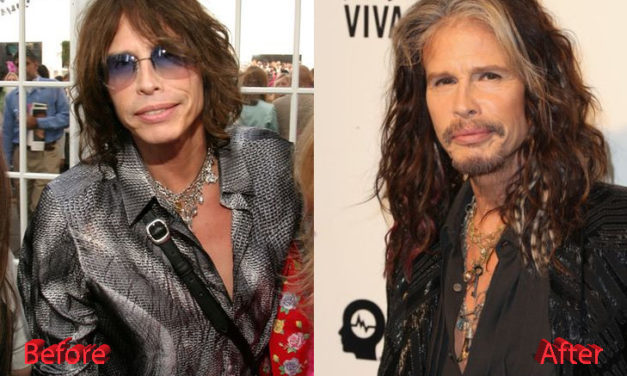 How Far Will Steven Tyler Go With Plastic Surgery?