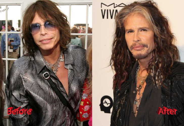Steven Tyler Before and After Surgery Transformation