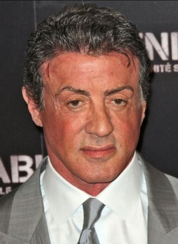 Sylvester Stallone After Plastic Surgery