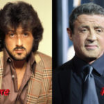 Sylvester Stallone Before and After Surgery 150x150