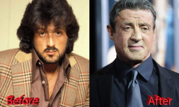 Sylvester Stallone Plastic Surgery Touch-ups