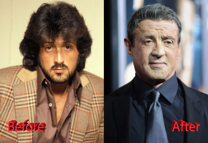 Sylvester Stallone Before and After Surgery