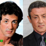Sylvester Stallone Plastic Surgery Before and After 150x150