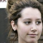 Ashely Tisdale Plastic Surgery after