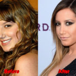 Ashely Tisdale Plastic Surgery before after nose job 150x150