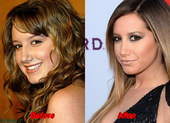 Speculations about Ashley Tisdale Nose Job