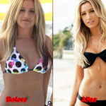 Ashley Tisdale Plastic Surgery before after 150x150