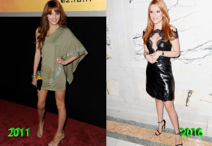 Before And After Bella Thorne Bella Thorne Nose Job Before And After ...