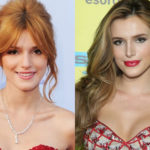 Bella Thorne Cosmetic Procedure Before and After