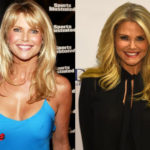 Christie Brinkley Before and After Cosmetic Surgery
