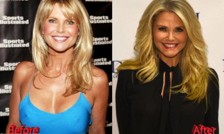 Christie Brinkley Plastic Surgery: What Do You Think?