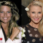 Christie Brinkley Cosmetic Procedure Before and After 150x150