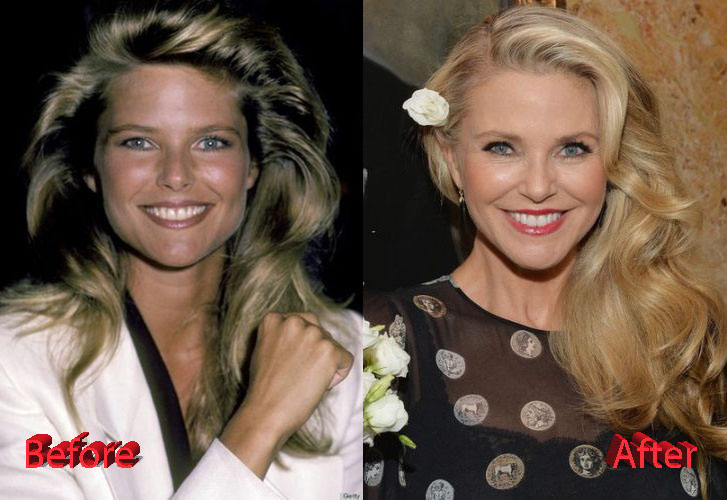 Christie Brinkley Cosmetic Procedure Before and After