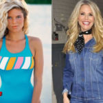 Christie Brinkley Plastic Surgery Before and After 150x150