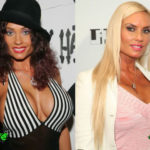 Coco Austin Before and After Cosmetic Surgery